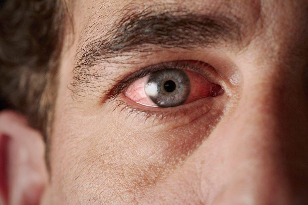 Juckende, tränende, brennende und/oder trockene Augen (Bild: © aastock - shutterstock.com)